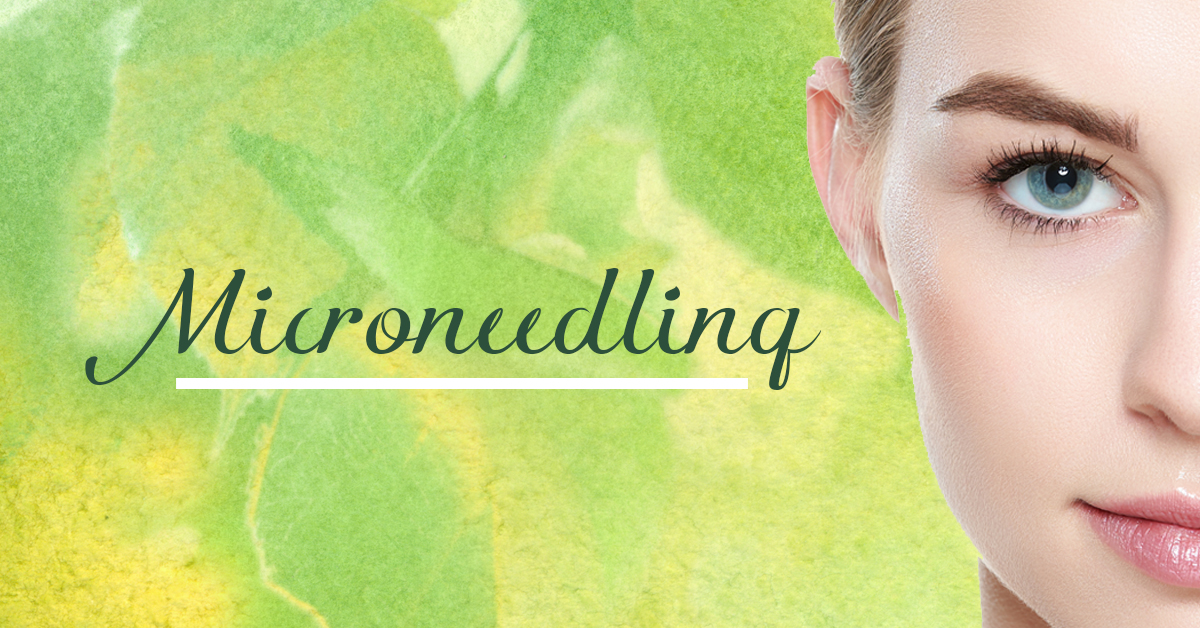 Microneedling Demonstration Feb4th 5:30pm