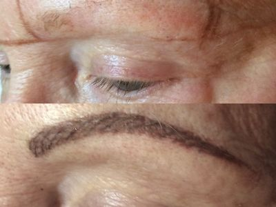 Before/After Brows