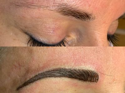 Eyebrow - Before & After